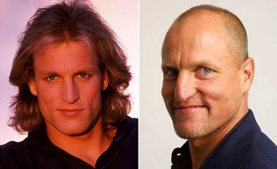 Woody Harrelson Saçlı Hali