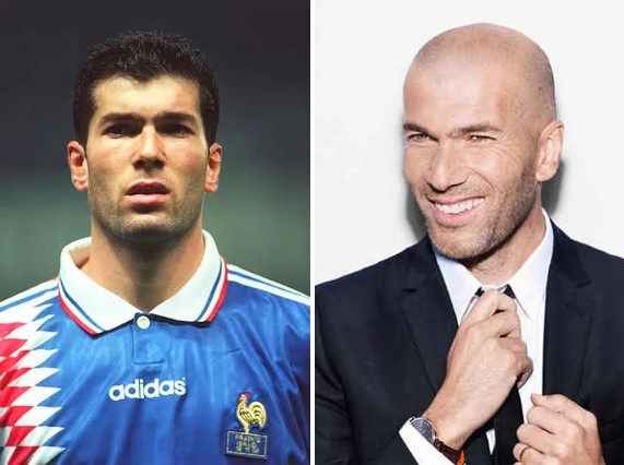 Zinedine Zidane Saçlı Hali