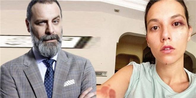 Darp Davası Devam Eden Ozan Güven İstanbul'dan Taşındı Mı?
