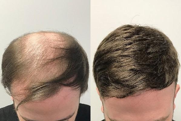 Saç Protez Merkezleri